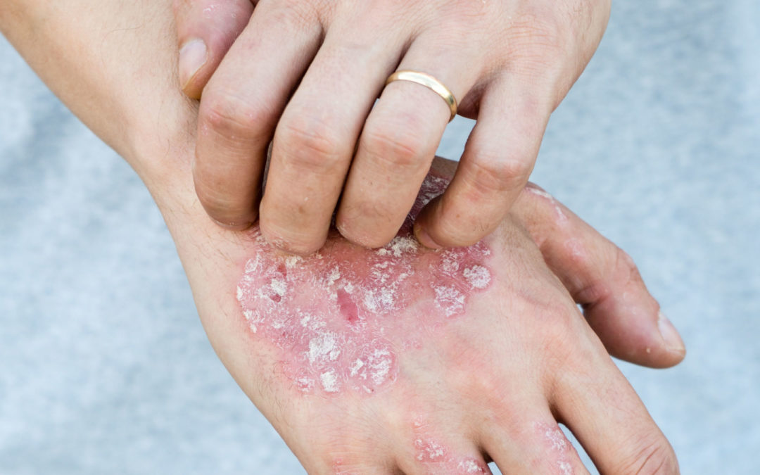 Plaques – Flat and raised skin changes in plaque psoriasis