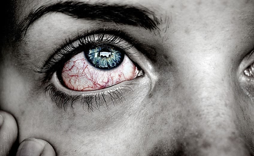 Psoriasis in the eyes: What do you have to watch out for?