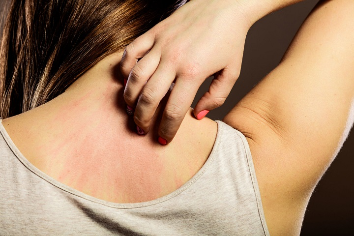 Histamine intolerance as the cause of various skin problems
