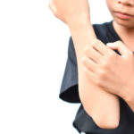 Psoriasis guttata – a special form of psoriasis in children